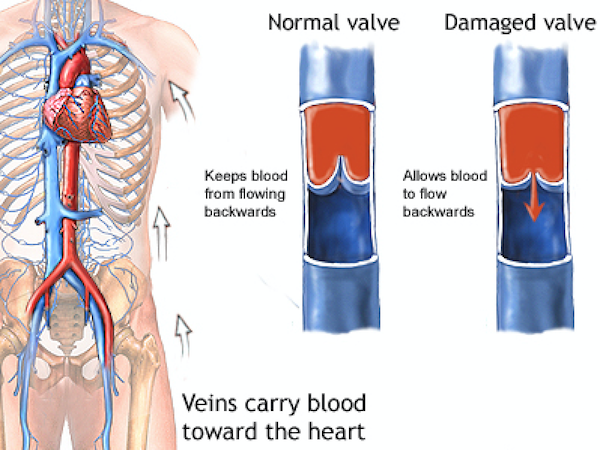 Diagram of normal valve vs damaged valve carrying blood towards the heart