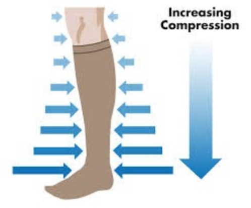 Graphic of graduated compression pressure