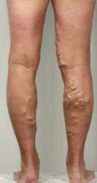 Photo of varicose veins