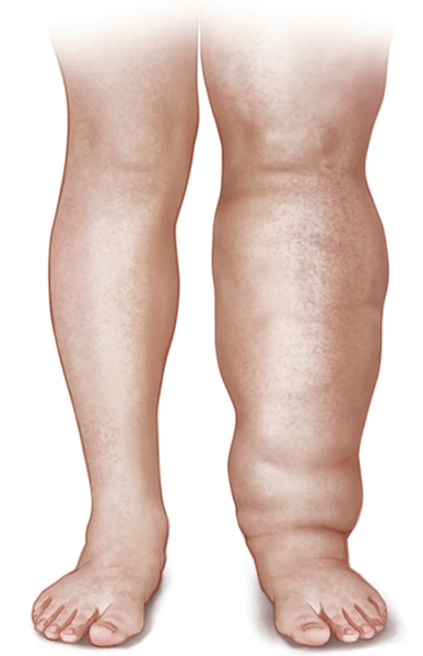 Wearing compression socks can prevent and treat lymphedema