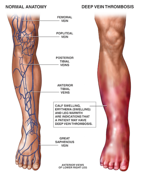 Graphic of Deep Vein Thrombosis