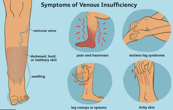 Compression stockings help combat venous insufficiency