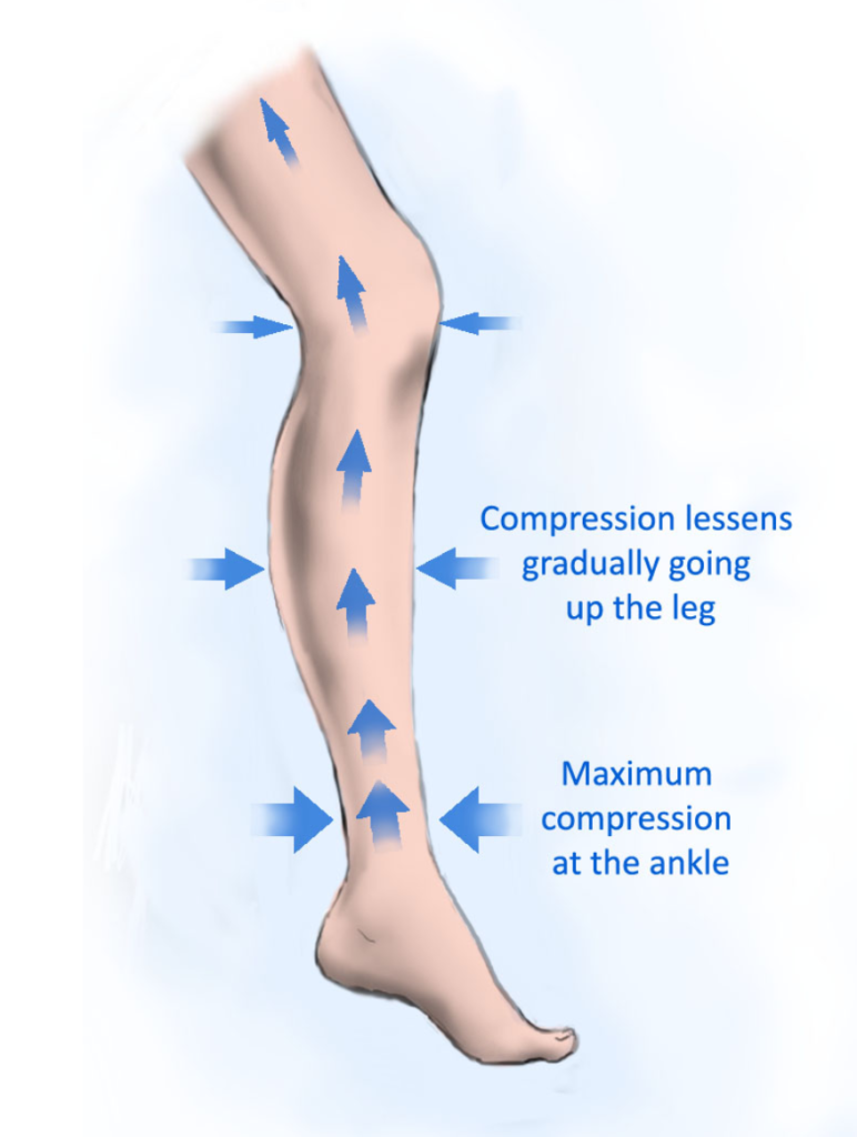 Compression Socks Give Maximum Compression at the Ankle and Gradually Lessens as the Stockings Go Up the Leg.