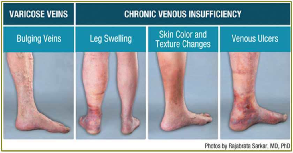 Varicose Veins vs Chronic Venous Insufficiency