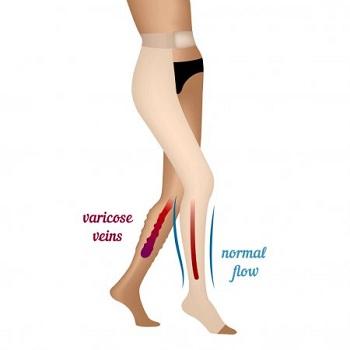 Varicose veins vs Normal flow