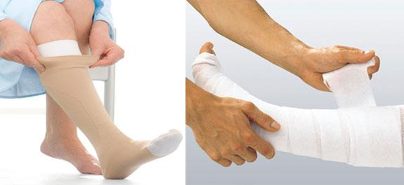 Support Socks Wore By a Patient
