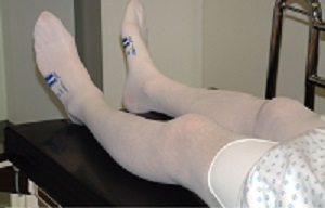 A surgical patient in anti-thrombosis stockings
