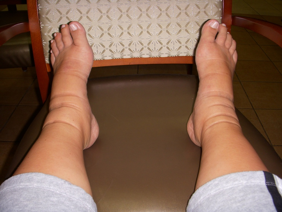 swollen legs from Pregnancy