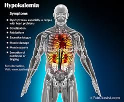 Symptoms Of Hypokalemia