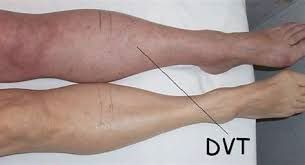 Symptoms of DVT