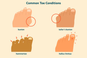 common toe conditions