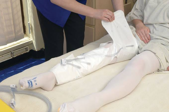 VTE Patient with Anti-embolism Stockings