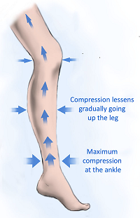 Image showing how compression ratios work on edema socks