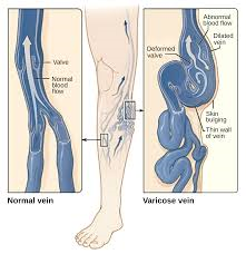 What a varicose vein looks like compared to a normal vein