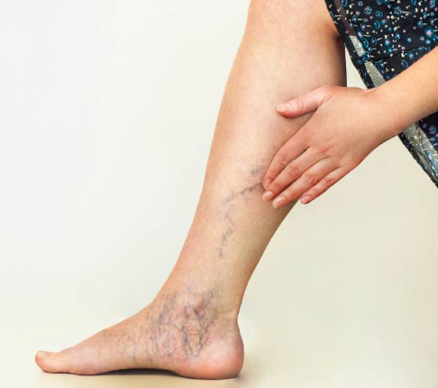 Signs of varicose in your leg include an appearance of bulging veins on the legs and feet.
