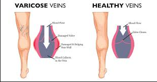 Varicose Veins and Maternity