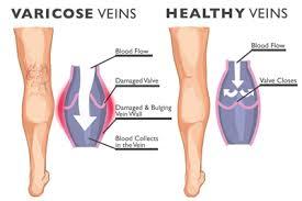 Varicose Veins Vs. Healthy Veins