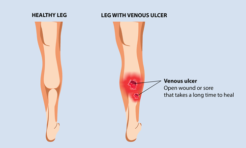 compression techniques can prevent venous ulcers