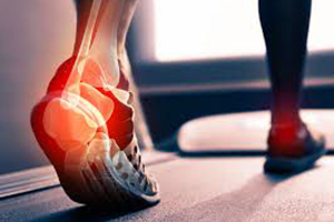 achilles tendinitis in sports