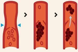 alleviate deep vein thrombosis