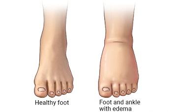 picture comparing healthy foot and foot with edema