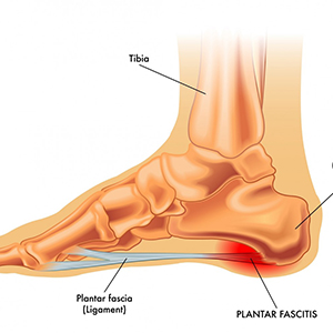 avoid plantar fasciitis