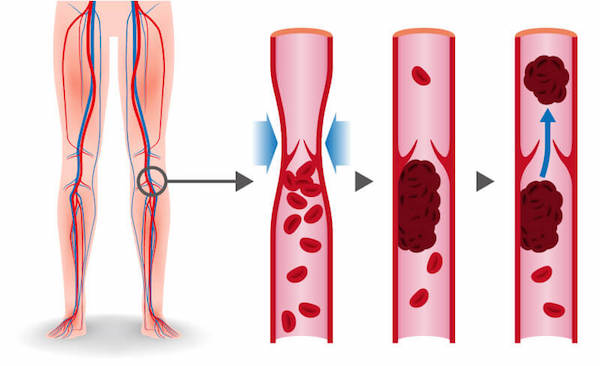 Forming of blood clots diagram