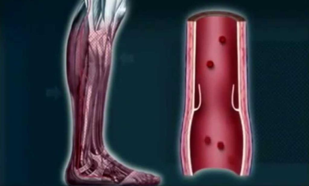 blood flow in legs