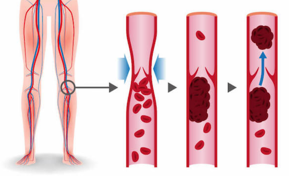 Compression socks can avoid the forming of blood clots which can cause blood flow disruption