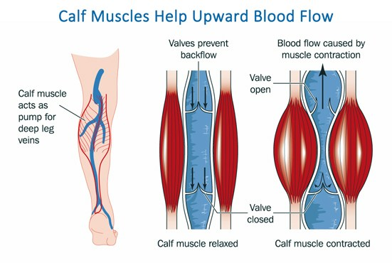 Compression socks help with muscle contraction to push blood more effciently towards the heart