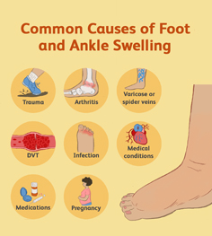 common-causes-of-foot-and-ankle-swelling