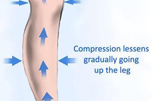 compression of compression socks decreases upwards