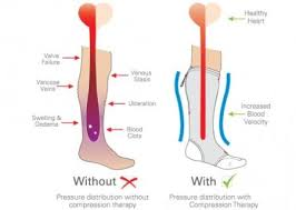 benefits of correctly using compression socks