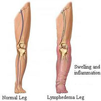 15 to 20 mmHg and 20 to 30 mmHg knee high graduated clothing can improve lymphatic drainage