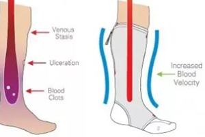 15 – 20 mmHg, 20 – 30 mmHg, or 30 – 40 mmHg knee high or thigh high compression socks can help prevent blood clots