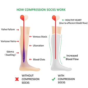 image showing legs with and without compression socks