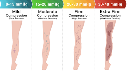 Compression Stockings Compression Levels