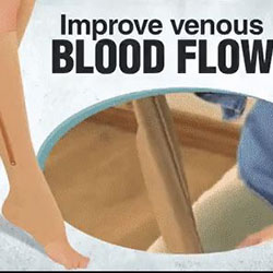 support hosiery improves venous flow