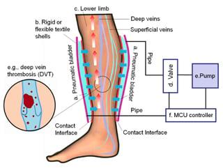 parts in legs