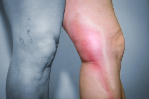 Deep vein Thrombosis in men use 20-30 mmHg  compression socks