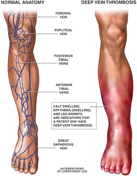 Graphic of Deep vein thrombosis
