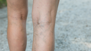 Image showing Deep vein thrombosis