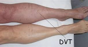 person's legs with Deep Vein Thrombosis