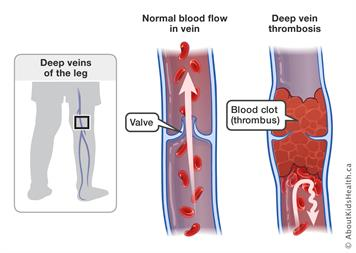 Wearing compression socks can prevent and treat deep vein thrombosis (DVT)