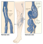 Varicose veins happen when the valves in the blood vessels no longer work, and blood cannot effectively pump back to the heart. Compression socks help support vein health and circulation.