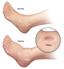 image of human leg with chronic swelling and edema