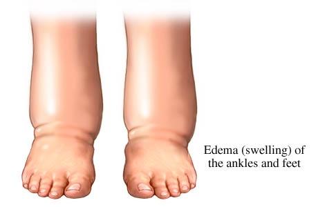 Graphic of edema