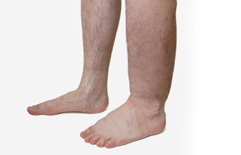 picture showing the difference between normal and swollen ankles and feet