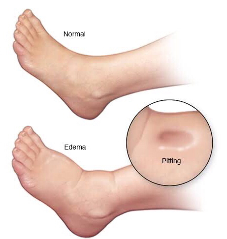 normal and foot with edema for compression socks