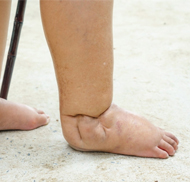 man standing with swollen ankle and feet